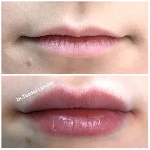 уколы красоты увеличение губ изменение формы от тонких к объемным