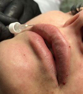 процедура увеличение губ киев