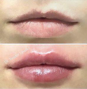 Увеличение губ, коррекция губ в NATEO beauty studio